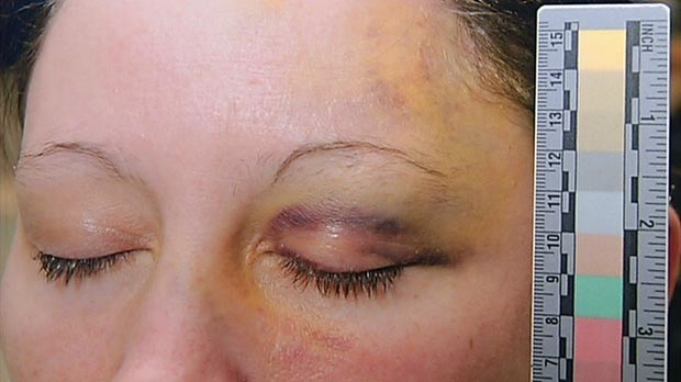 This photo submitted as evidence shows injuries sustained by Aimee McIntyre, a fellow inmate of Terri-Lynne McClintic at the Grand Valley Institution for Women in Kitchener, Ont.
